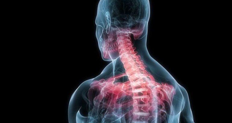 Assicurazioni: colpo di frusta? Serve la radiografia